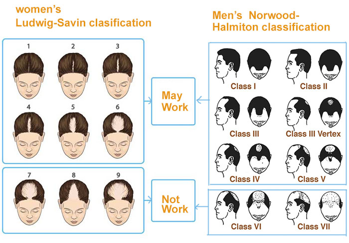 men and women's hair loss classifications