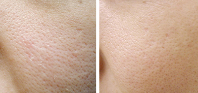 microneedling large pores