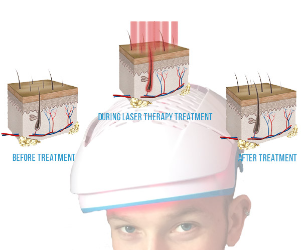 low level laser therapy for hair loss review